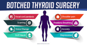 What Happens When Thyroid Surgery Turns Out Bad?